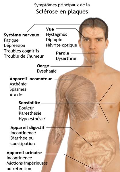 Symptômes de la sclérose en plaque handicape maladie
