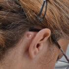Image de kyste derrière l'oreille