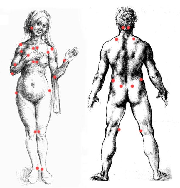 fibromyalgie les symptômes maladie santé