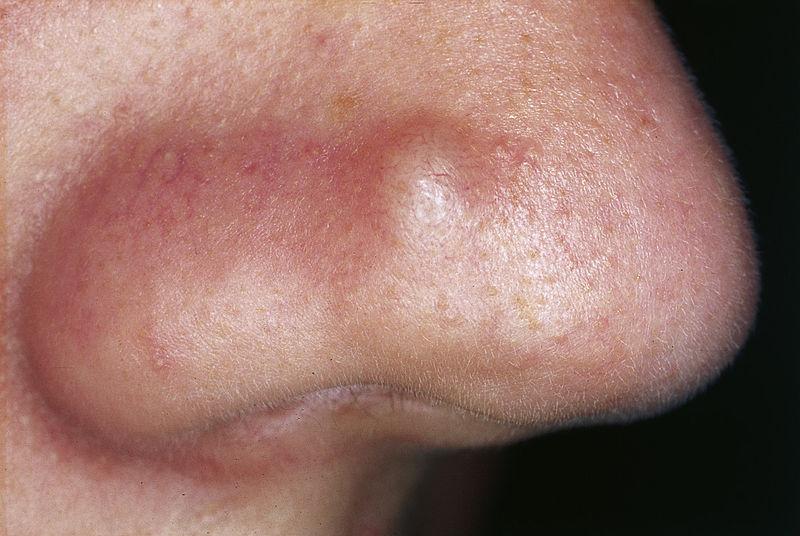 Nodule-acné