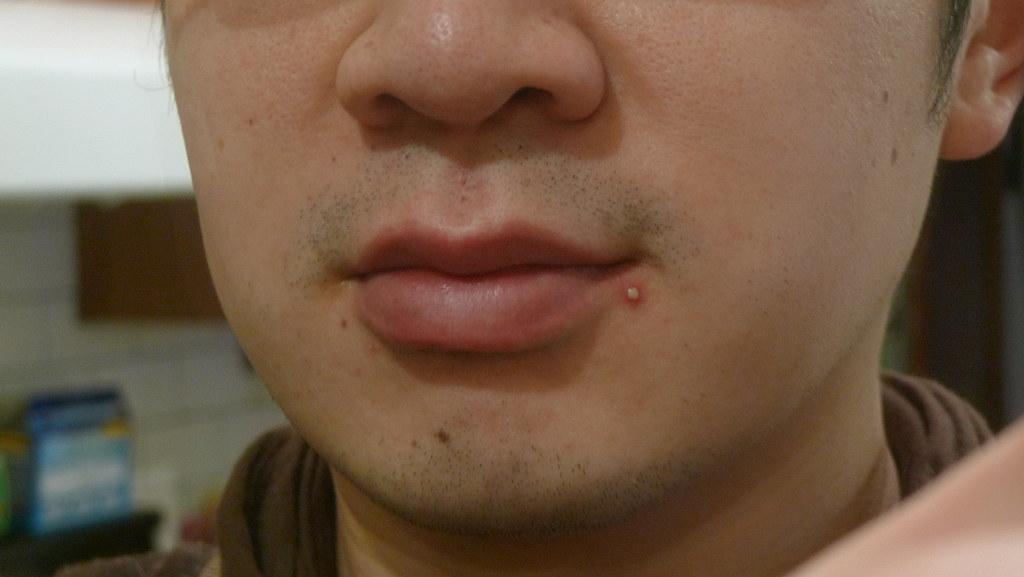 Pustules - acné