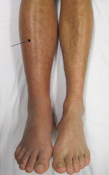 Thrombose de la jambe