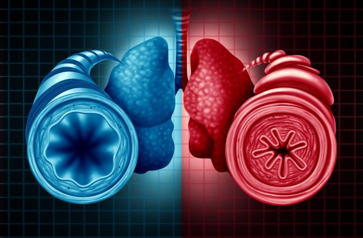 Asthme diagnostic