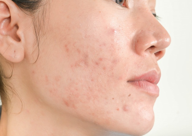 Cicatrice d'acnés