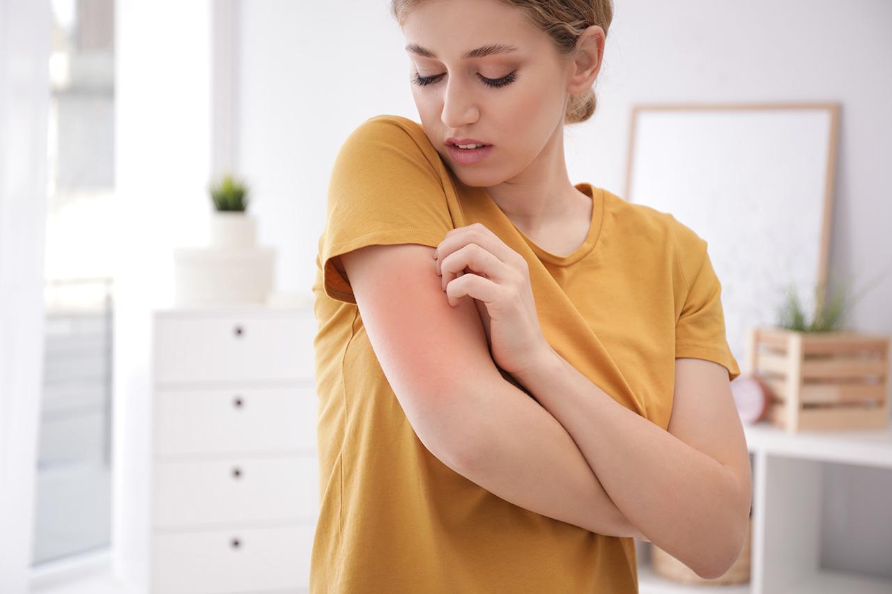 eczema demangeaison rougeur boutons