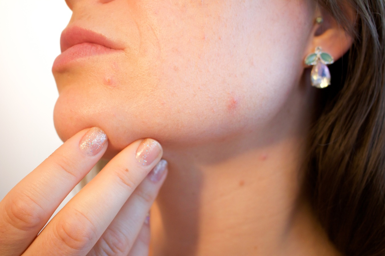 dermatite seborrhéique maladie de la peau