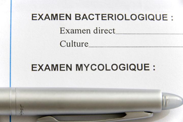 infection urinaire examen bacteriologique