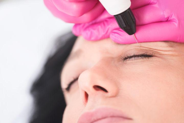 Paupières tombantes, poches sous les yeux, problème de vision : elles ont osé la blépharoplastie