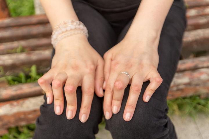 La goutte : l'accumulation de cristaux d'acide urique dans le sang