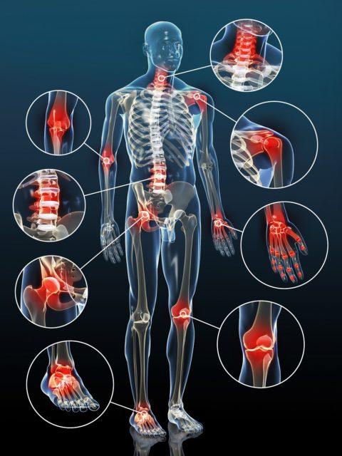 articulations-arthrose-inflammation