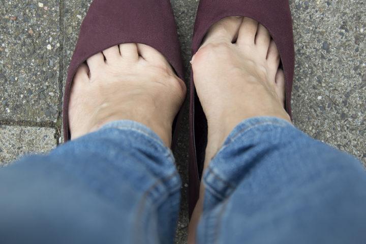 oignons hallux valgus pieds maladie