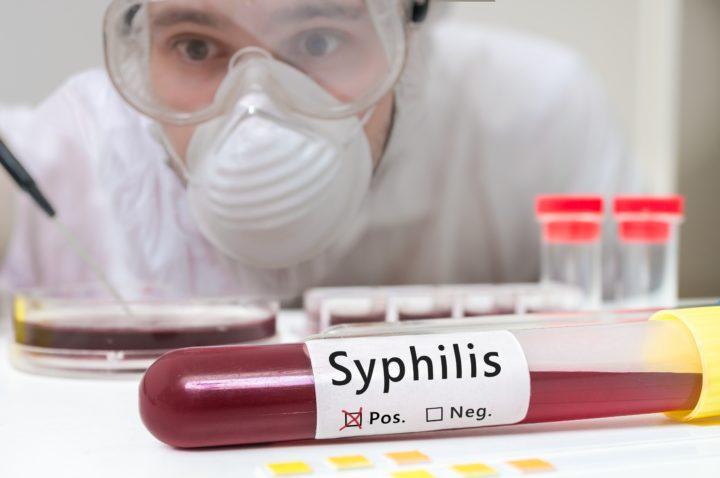 Syphilis IST